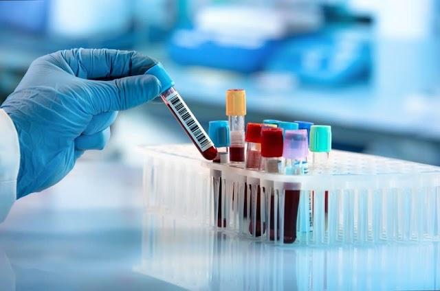 Cientistas afirmam que certos tipos sanguíneos têm maior chance de contrair Covid-19