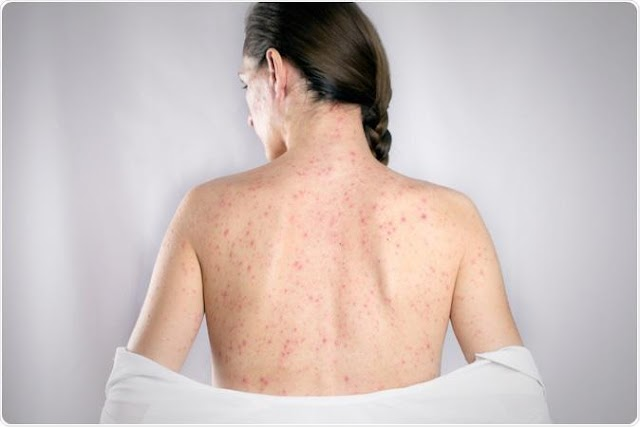 Measles | Signs and Symptoms of Measles | Treatment and Causes