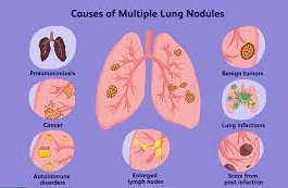 Detailed Lung Nodules Infographics