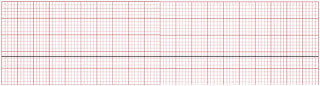 An ECG of asystole.