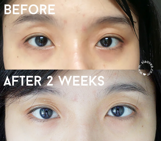 Avoskin Intensive Nourishing Eye Cream Review, Avoskin Review, Avoskin Before After