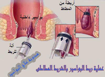 عملية ربط البواسير بالشريط المطاطى  RBL
