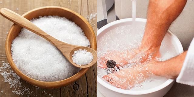 Ngâm vết chai vào nước muối ấm hằng ngày để làm mềm vết chai