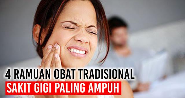 Ini Dia 4 Ramuan Obat Tradisional Sakit Gigi paling ampuh