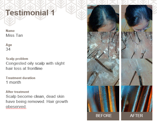 Testimoni  Ha'labo Hair & Scalp Management