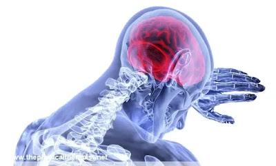 أعراض تسبق الجلطة الدماغية : 4 إشارات تحذيرية يرسلها جسمك