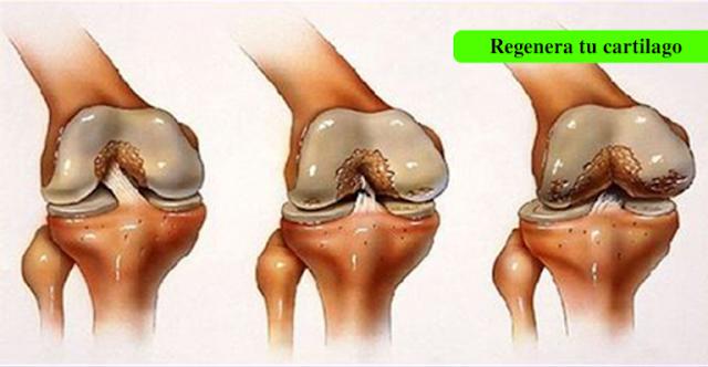 Артрит коленного сустава и артроз в чем разница фото