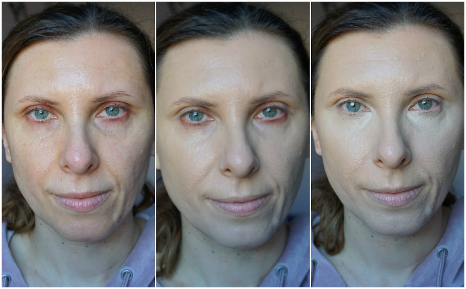 No7 HydraLuminous Foundation and Dark Circle Concealer-before and after photos