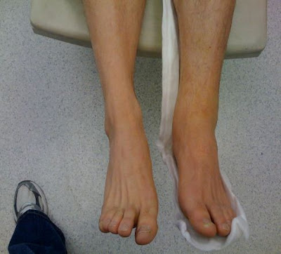 Fractured Ankle Pictures