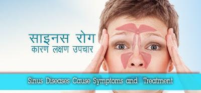साइनस का रामबाण इलाज,  साइनस लक्षण इलाज, sinus lakshan ilaj, Sinus ki Jaanch, साइनस आयुर्वेदिक उपचार,  Home remedies for Sinus, साइनस , साइनसाइटिस
