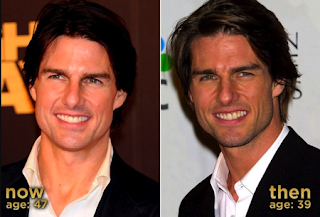 Chatter Busy: Tom Cruise Surgery