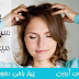 ۸ عامل خارش سر و راهای علاج آن