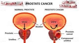 سرطان البروستاتا ما بين التشخيص والعلاج