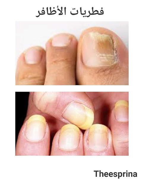 علاج فطريات أظافر القدم وبعض النصائح لتجنب تكرار الإصابة