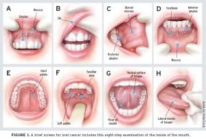 อาการมะเร็งช่องปาก