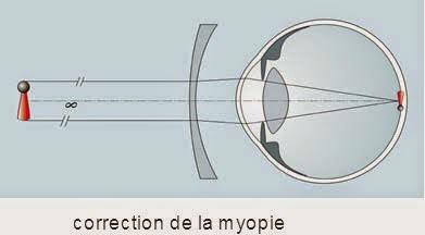 L image est replacée sur la rétine, la vision est nette jusqu à l infini.  Plus la correction est forte, plus le bord du verre est épais. la myope fb7fbe6389cd