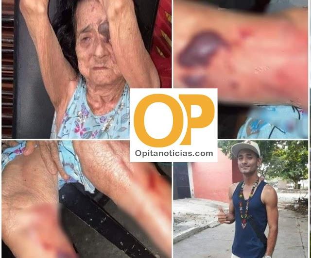 Por una papa frita joven golpea brutalmente a su abuelita