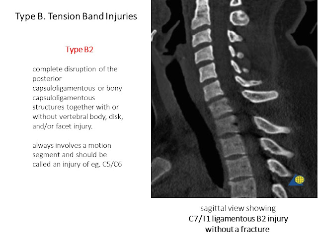 Type B AO Classification Cervical Spine Injries