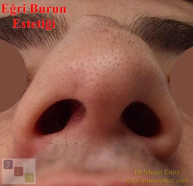 Eğri burun tedavisi - Eğri burun ameliyatı - Eğri burun estetiği - Yamuk burun estetiği - Yamuk burun tedavisi - Eğri burun ameliyatından sonra burun ateli ne kadar süre ile tutulmalıdır? - Eğri burun estetiği sonrası burun ateli ne zaman alınır? - Eğri burun tedavisindeki zorluklar - Crooked nose - Deviated nose - Twisted nose - Deflected nose - Asymmetric nose - Scoliotic nose - Eğri burun - C burun - S-shaped crooked nose deformity -  Rhinoplasty Istanbul - Rhinoplasty in Istanbul - Rhinoplasty Turkey - Rhinoplasty in Turkey – Rhinoplasty doctor in Istanbul – ENT doctor in Istanbul - Nose Job in Istanbul - Before and after rhinoplasty photos