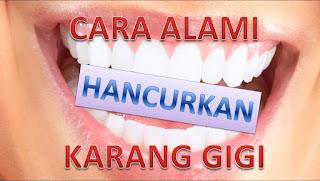 Cara Menghilangkan Karang Gigi Yang Sudah Mengeras Secara Alami