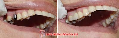 có nên cắm ghép răng implant không -10