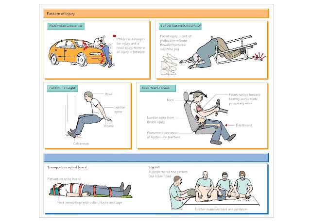 Trauma: Secondary Survey, Log roll, perineal injury, Patterns of injury, Fluid resuscitation, Surgical resuscitation,