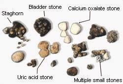 obat Kapsul Herbal batu Ginjal Di Apotik
