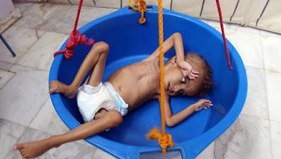famine au Yémen