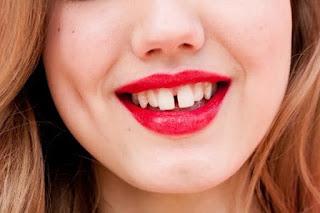Trám thẩm mỹ răng thưa có bền hay không?