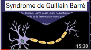Syndrome de Guillain Barré