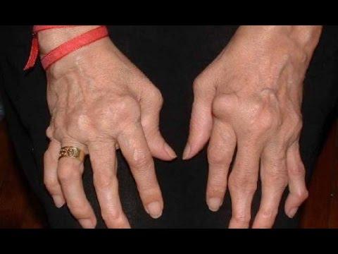 reumatismo palindromico diagnosi)