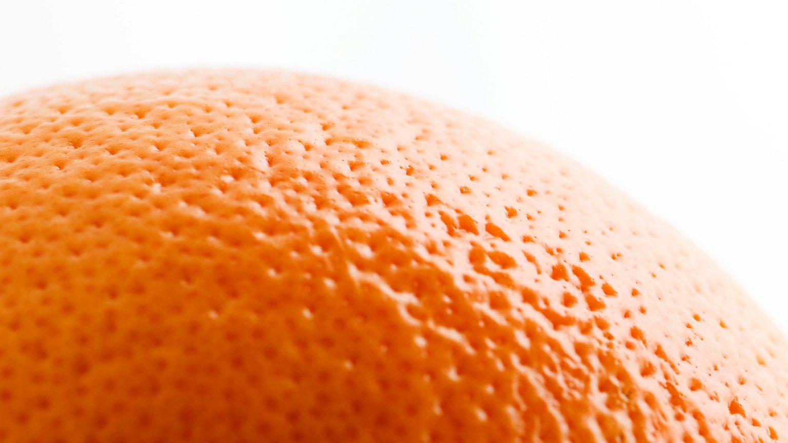 Lỗ chân lông to khiến da sần sùi như vỏ cam