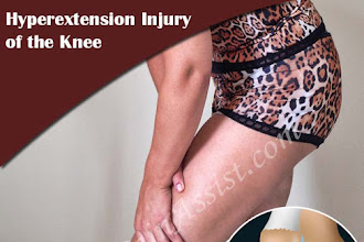 O que é lesão de hiperextensão do joelho e como é tratado?