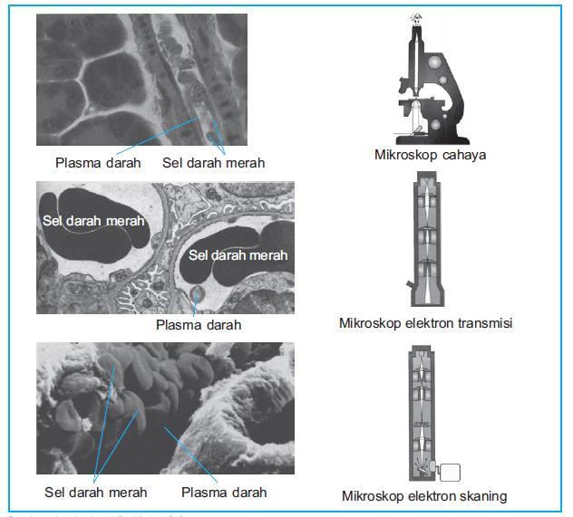 Perbedaan hasil pembesaran mikrokop cahaya dan mikroskop electron