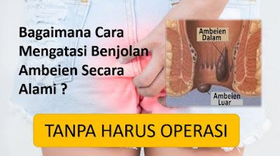 Pengobatan Benjolan Anus (Wasir) Di Samarinda Tanpa Operasi (WA 082326813507)