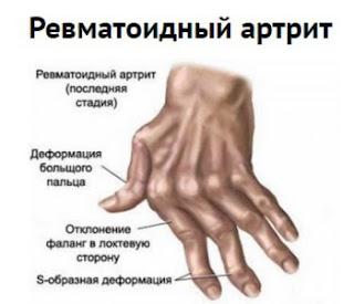 Артрит пальцев рук к какому врачу обращаться