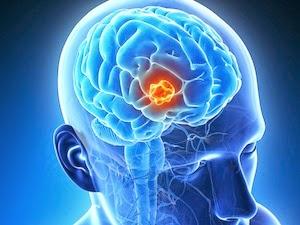 Cara Mengobati Kanker Otak Tanpa Operasi