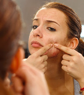 5 Ways To Control Comedonal Acne