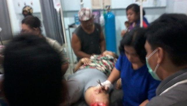 Agoh.. Haccit Nai, Kaki Boru Hutapea Patah Dilindas Truck, Akibat Lampu Sein Ibu2 Yang Tidak Nyala