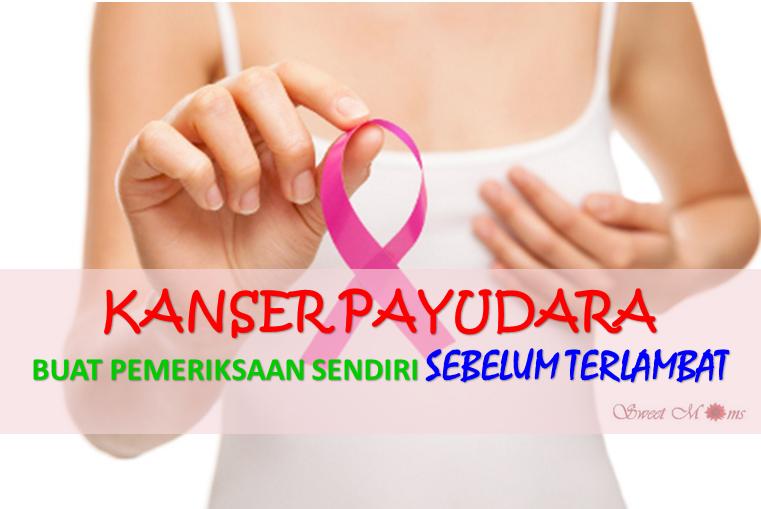 Image result for benjolan kanser payudara
