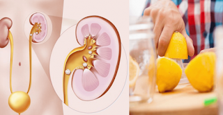 How To Get Rid Of Kidney Stones