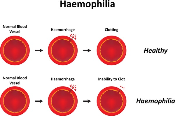 hemophilia-facts