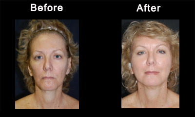 Jacksonville Plastic Surgery and Cosmetic Surgery | Breast