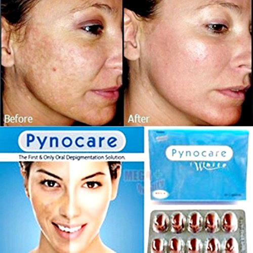 Pynocare, how to reduce skin pigmentation