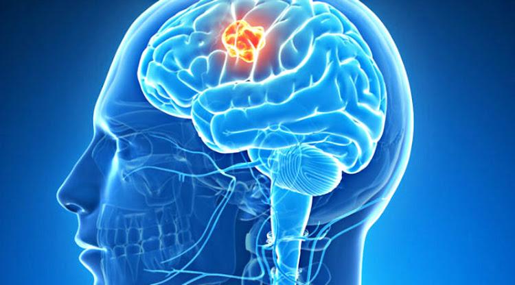 líquido cefaloraquideo