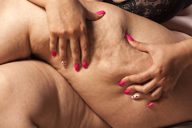 Habitudes qu'on fait, mais qui causent la flaccidité et la cellulite dans tout le corps