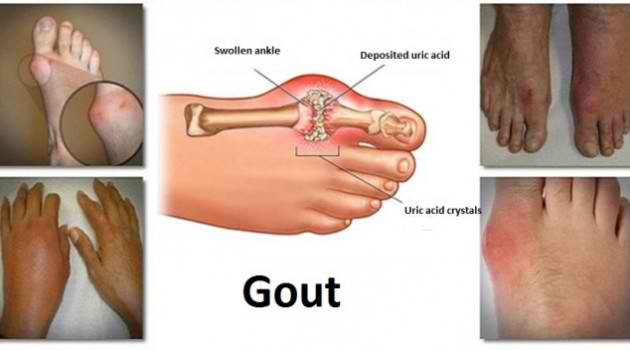 diet to reduce uric acid in urdu over the counter pill for gout relieve gout pain big toe