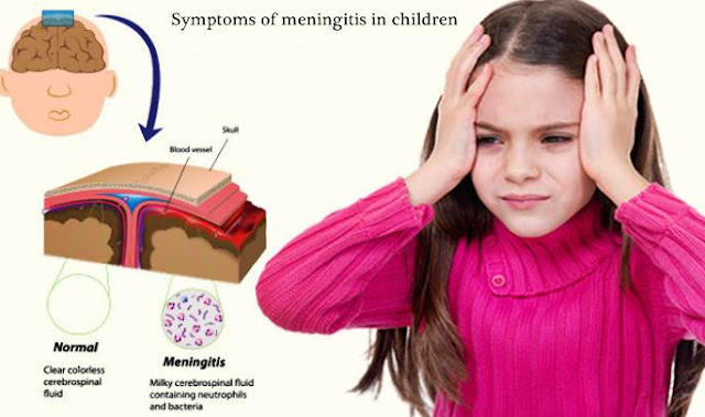 Symptoms-meningitis-children