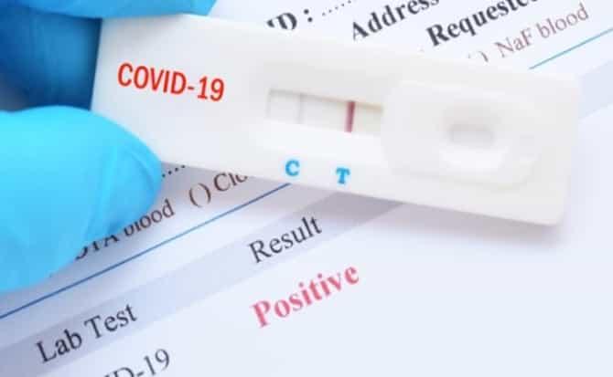 test, coronavirus,