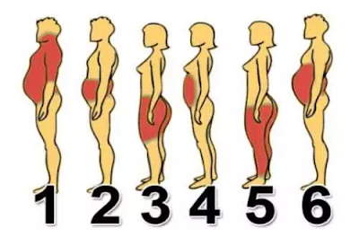 6 types of obesity that can invade the human body